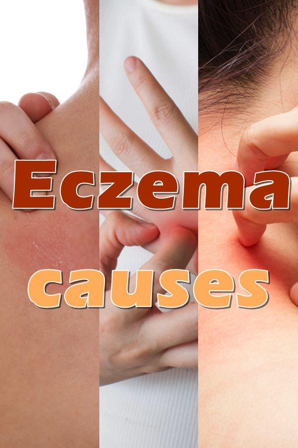 Eczema always consists of a rash, which could show up on any portion of the body.